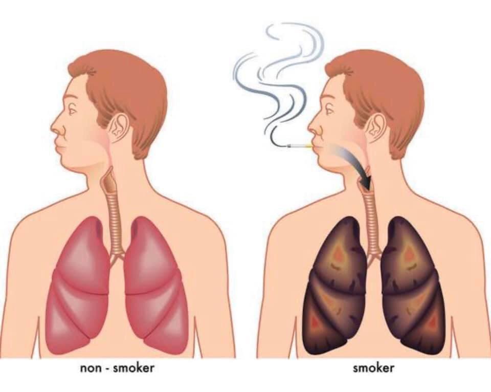 健康的肺和吸煙的肺