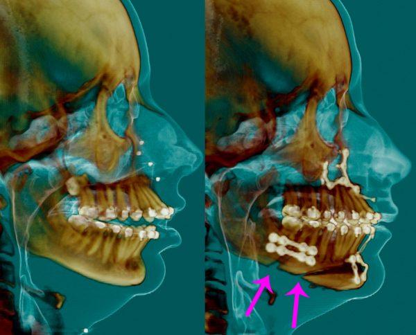 正顎骨手術